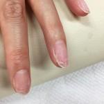 亀裂の入った爪のお直し【アクリルネイル】